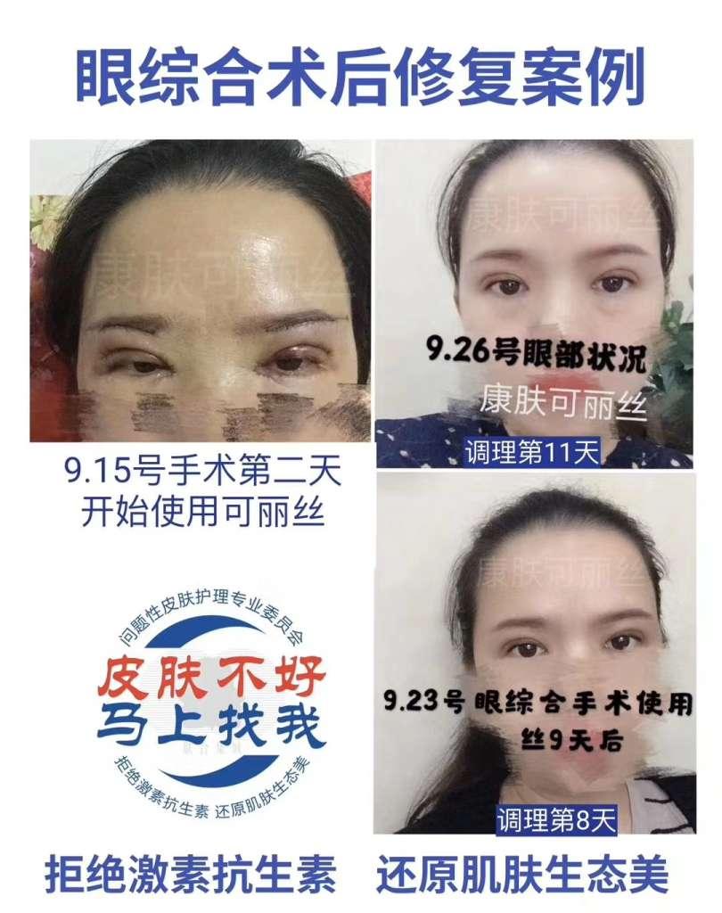 康复可丽丝护肤乳液产品效果好不好,客户反馈真实吗